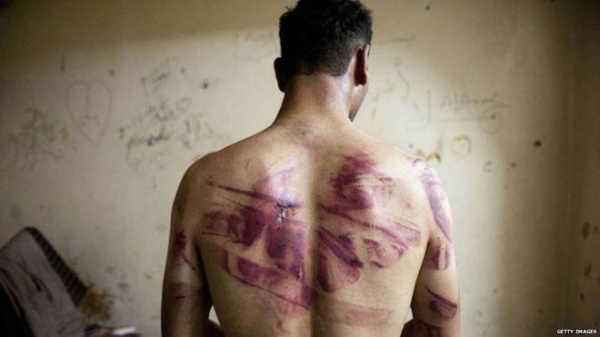 UNHCR: Rezim Presiden Assad Siksa dan Musnahkan Tahanan