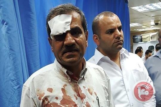 Israel Lukai Empat Orang Palestina dalam Bentrokan di Nablus