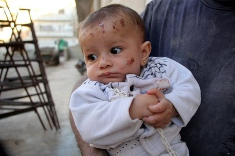 Bayi Suriah Empat Bulan Selamat di Bawah Reruntuhan