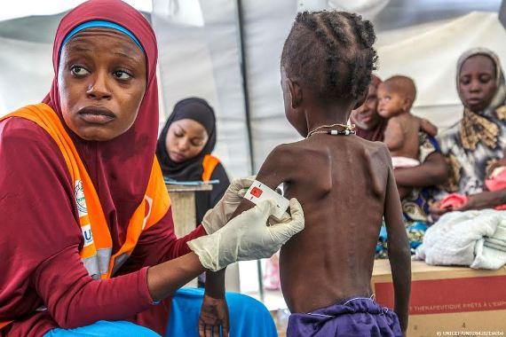 Ada 1,4 Juta Anak Terancam Mati Tahun Ini Karena Kelaparan