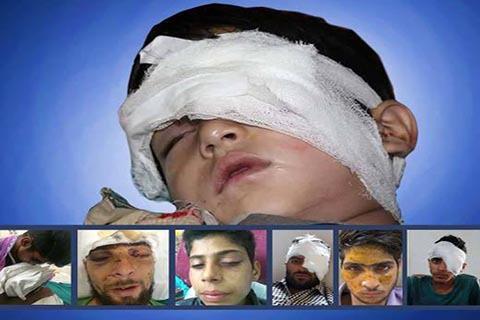 Setelah Buta, Korban Peluru Pelet di Kashmir Terancam Hilang Ingatan