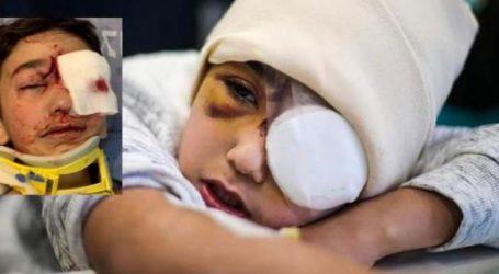 Ditembak Polisi Zionis Israel, Bocah Palestina Kehilangan Penglihatan